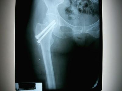 placa, estudio, imagen, radiografia, hueso, parte